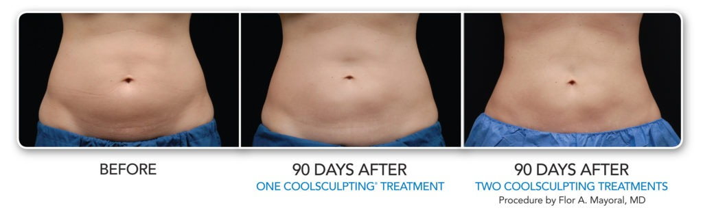 FREEZE AWAY UNWANTED FAT WITH COOLSCULPTING®!