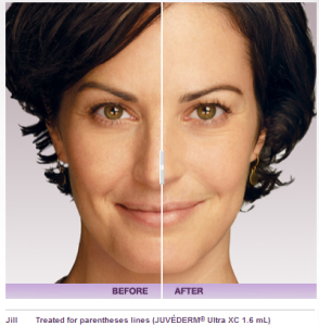 What is Juvederm Vollure XC? | Palm Desert Medical Spa | Rancho Mirage