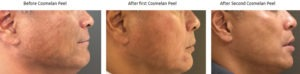 Cosmelan Chemical Peel Before & After Photo