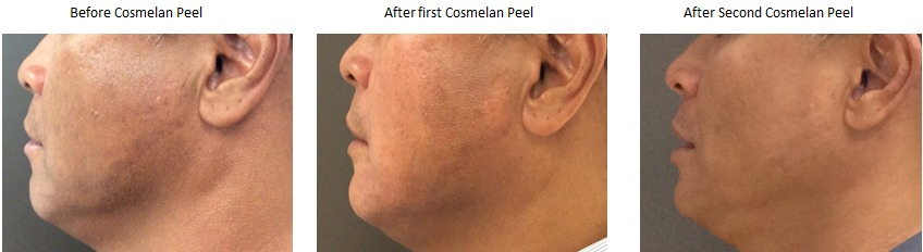 Cosmelan Chemical Peel Before & After Photos
