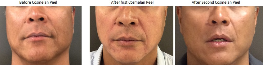 Cosmelan Chemical Peel Before & After Pictures