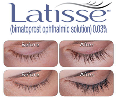 latisse_before and after photos