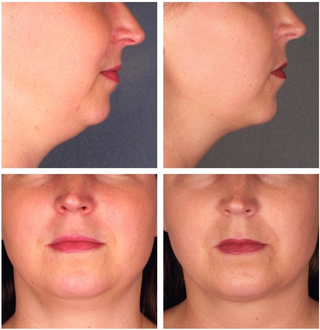 Kybella Injections for Double Chin Reduction Before After Photos