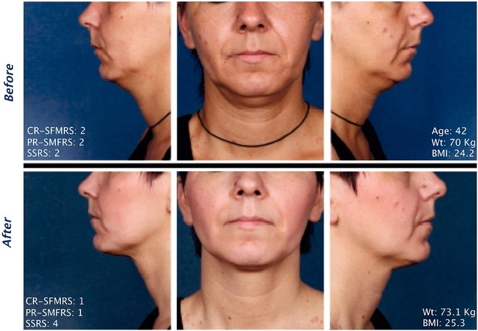 Kybella Injections for Double Chin Reduction Before After Picture