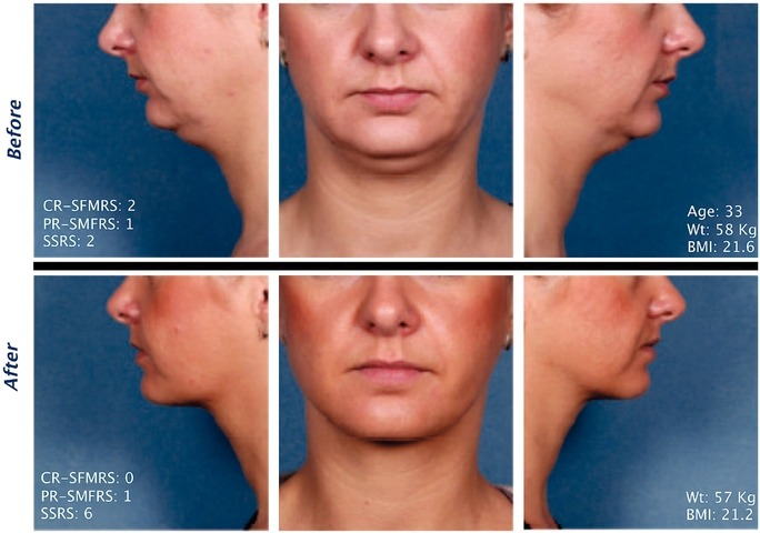 Kybella Injections for Double Chin Reduction Before After Pictures