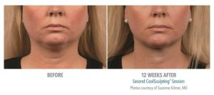Coolsculpting for chin fat reduction before after picture