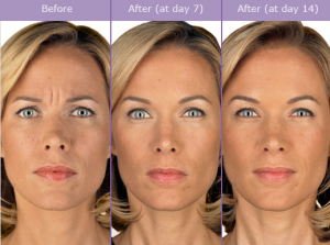 Botulinum Toxin Procedure Steps | Rancho Mirage | Palm Springs
