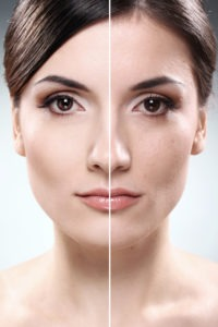 Laser Skin Resurfacing Treatments | Palm Desert Medical Spa | Rancho Mirage